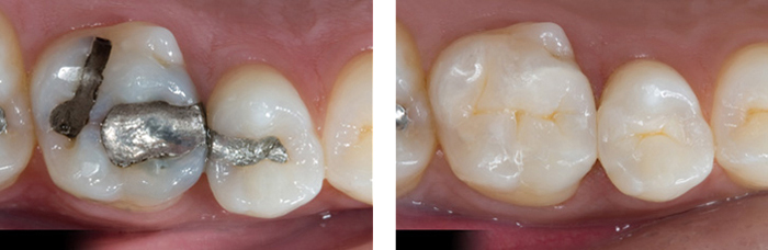 tooth colored filling before and after